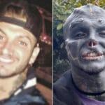 Transformation extrême : après le nez et les oreilles, « Black Alien » se fait retirer la lèvre