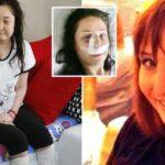 Une femme perd ses jambes après avoir subi une chirurgie du nez